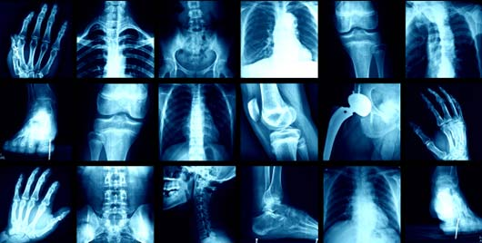 رادیولوژی