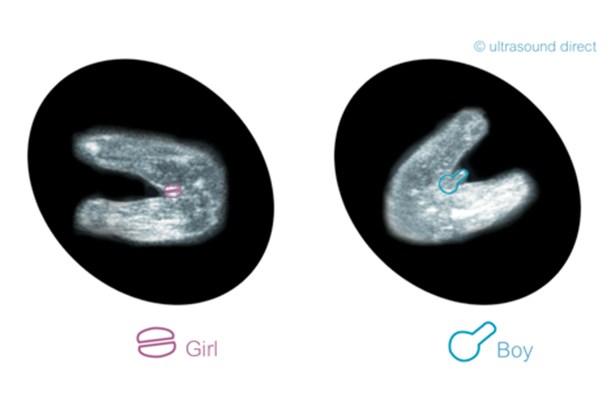 تفاوت جنین دختر و پسر در سونوگرافی هفته 12