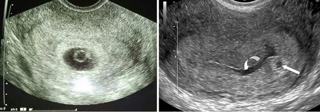 سونوگرافی بارداری هفته اول