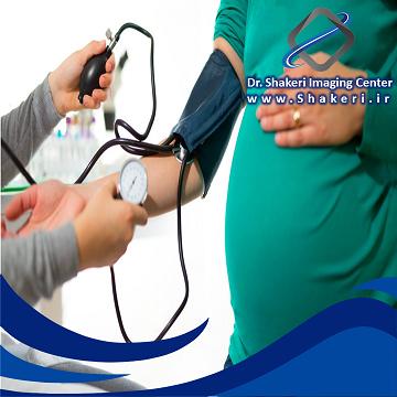 بررسی فشار خون خانم باردار