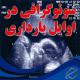 سونوگرافی در اوایل بارداری