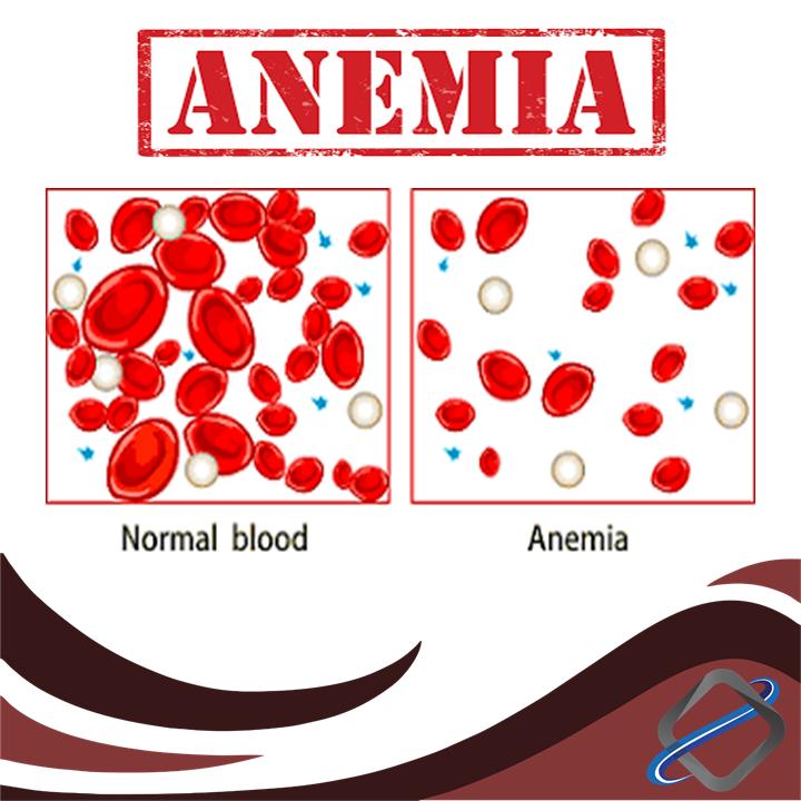 کم خونی (آنمیا)