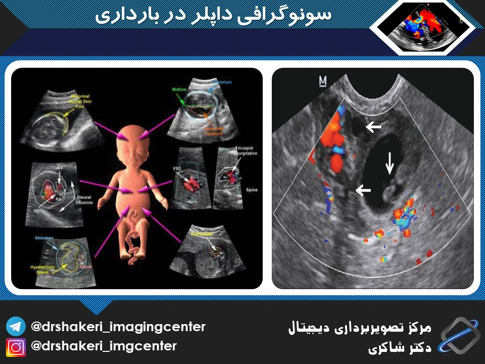 تفسیر سونوگرافی داپلر در بارداری