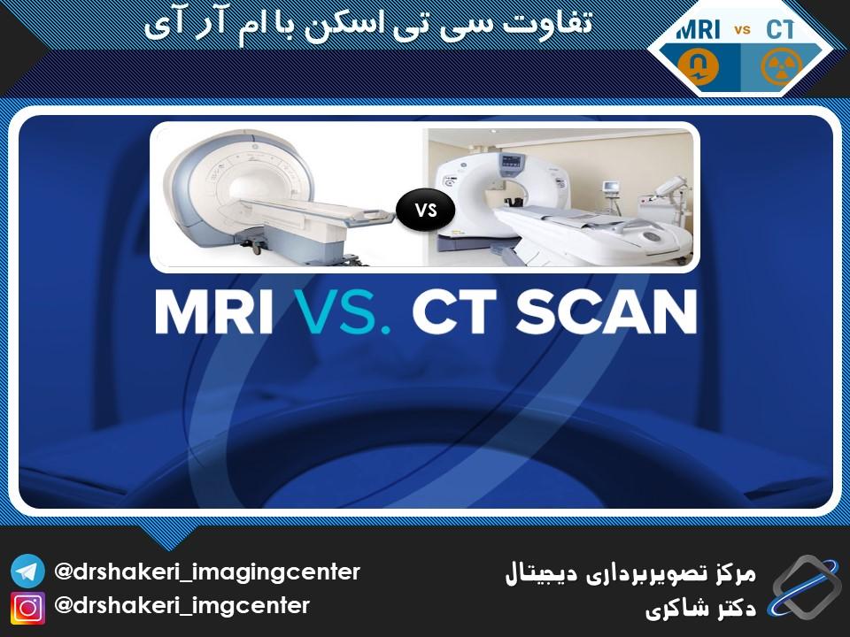 تفاوت CT scan با MRI